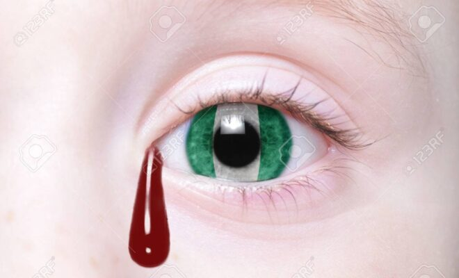 Nigeria is crying blood